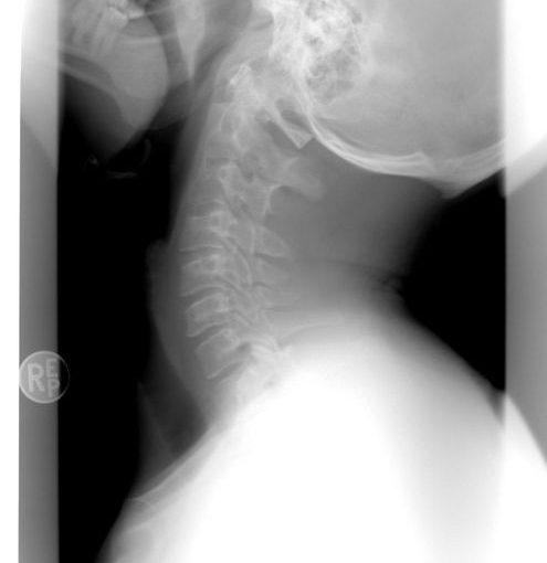 Jak działa aparat rentgenowski?